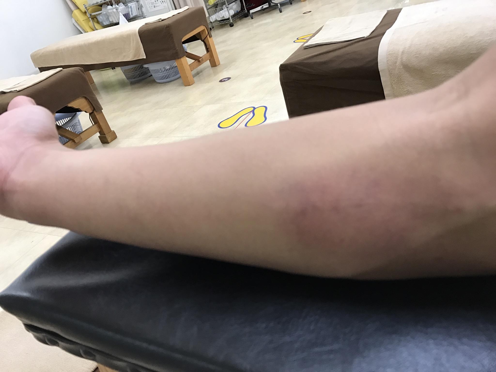 ソフトボールで肘の内側打撲の治療例