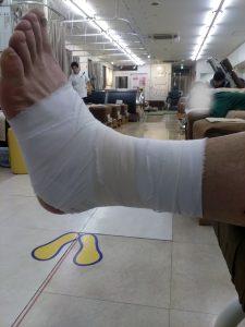 症状事例:足関節捻挫