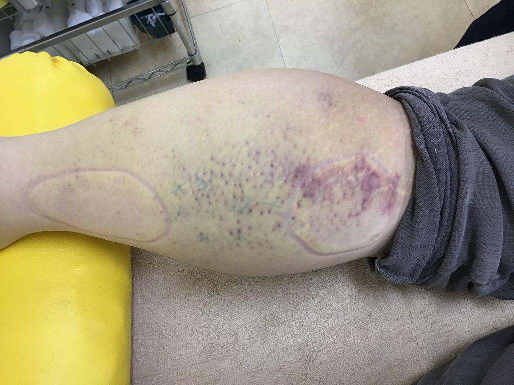 症例紹介:下腿部(ふくらはぎ)の挫傷