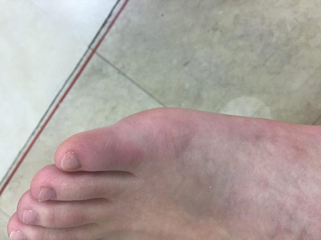 症例紹介:右足第五趾(小指)捻挫