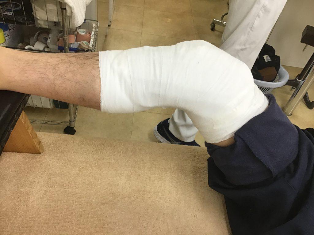 右足脛骨疲労骨折
